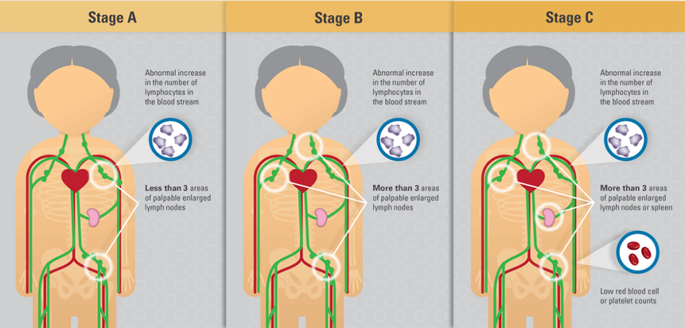 staging of CLL Stage A Stage B and Stage C